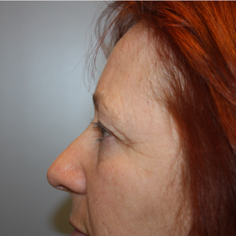 55-64 year old woman treated with Eyelid Surgery before 3808823