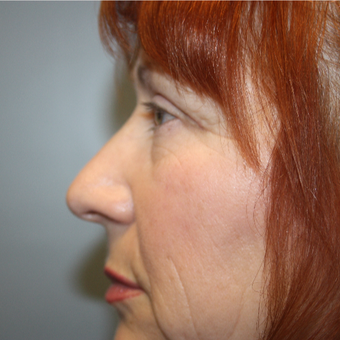55-64 year old woman treated with Eyelid Surgery after 3808823