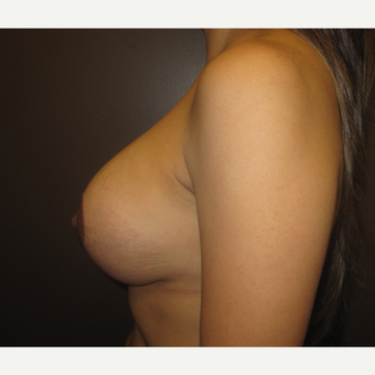 25-34 year old woman treated with Breast Augmentation after 3321242