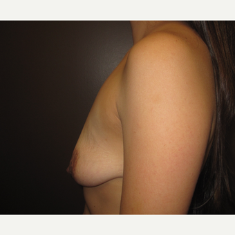 25-34 year old woman treated with Breast Augmentation before 3321242