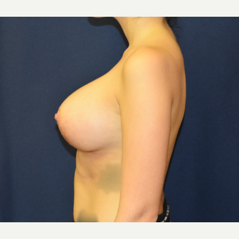 18-24 year old woman treated with Breast Lift with Implants after 3792038