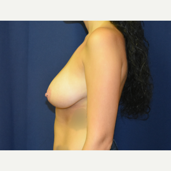 18-24 year old woman treated with Breast Lift with Implants before 3792038