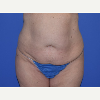 35-44 year old woman treated with No-Drain Tummy Tuck before 3649498