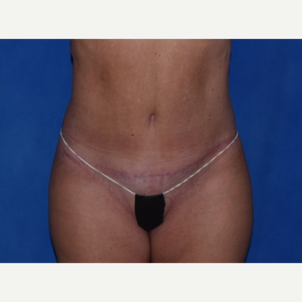 35-44 year old woman treated with No-Drain Tummy Tuck after 3649498