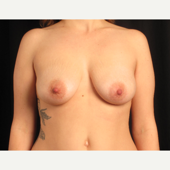 25-34 year old woman treated with Breast Lift with Implants before 3537638