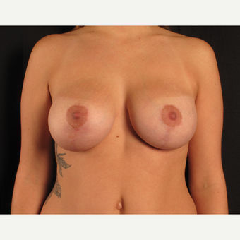 25-34 year old woman treated with Breast Lift with Implants after 3537638
