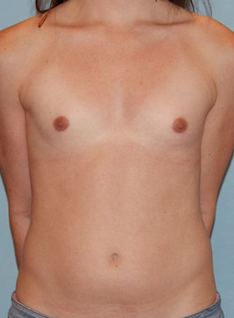 Transgender Breast Augmentation before 673498