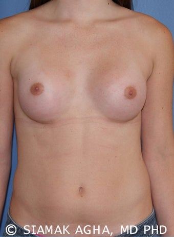 Transgender Breast Augmentation after 673498