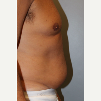 55-64 year old man treated with Tummy Tuck before 3529042