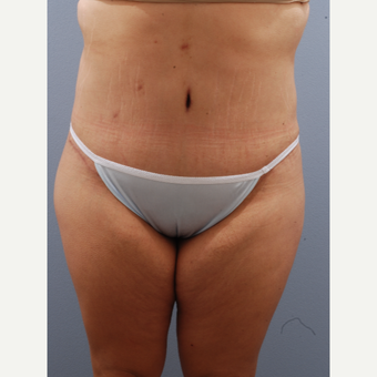 25-34 year old woman treated with Tummy Tuck after 3590067