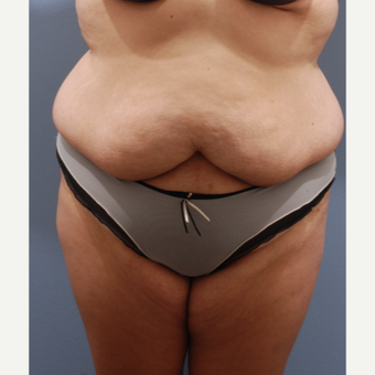 25-34 year old woman treated with Tummy Tuck before 3590067