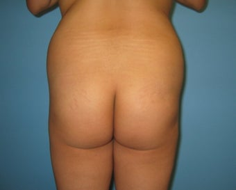 buttock augmentation (Brazilian buttock lift) before 284970