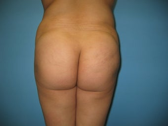 buttock augmentation (Brazilian buttock lift) after 284970
