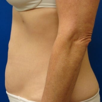 55-64 year old woman treated for Smart Lipo after 1534887