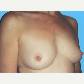 Breast Augmentation before 3732701