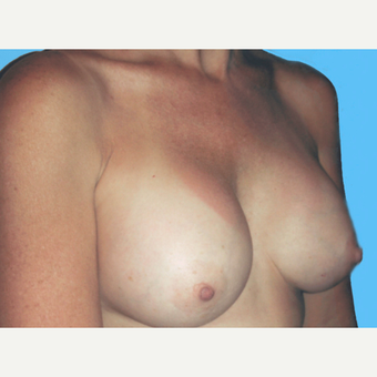 Breast Augmentation after 3732701