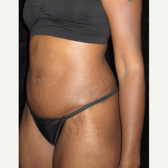 27 year old woman treated with Tummy Tuck after 3656851