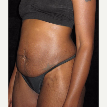 27 year old woman treated with Tummy Tuck before 3656851