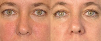 Skin tone and texture with IPL + Sublative before 1174580