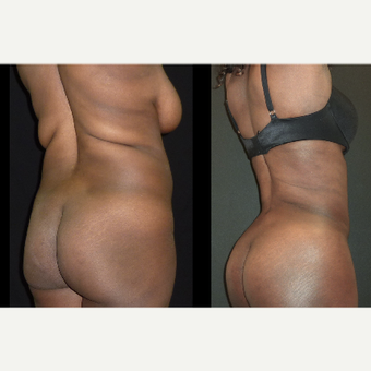 25-34 year old woman treated with Liposuction before 3717668