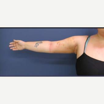 25-34 year old woman treated with Arm Lift after 3831711