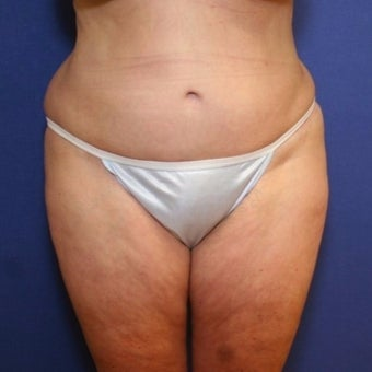55-64 year old woman treated with Tummy Tuck after 2034784