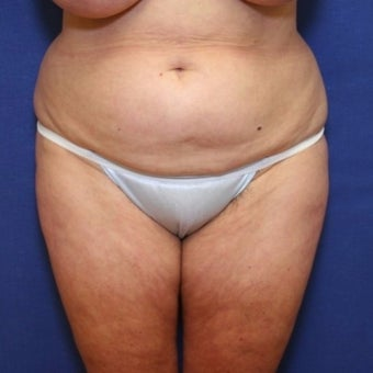 55-64 year old woman treated with Tummy Tuck before 2034784