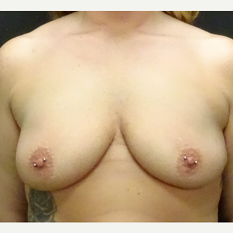 35-44 year old woman treated with Breast Augmentation before 3246174