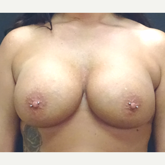 35-44 year old woman treated with Breast Augmentation after 3246174