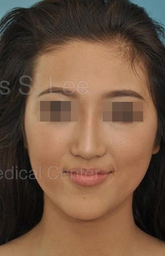 18-24 year old woman treated for Asian Rhinoplasty