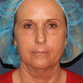 56 year old woman treated with Laser Peel