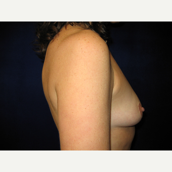 35-44 year old woman treated with Breast Implants before 3727201