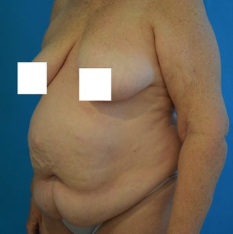 65-74 year old woman treated with Tummy Tuck before 2674947