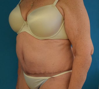 65-74 year old woman treated with Tummy Tuck after 2674947