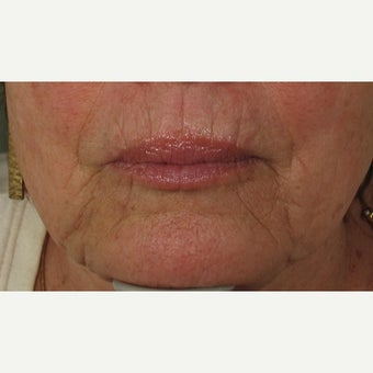 65-74 year old woman treated with Juvederm before 1709652