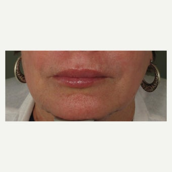 65-74 year old woman treated with Juvederm after 1709652