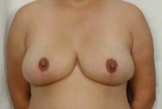 31 year old woman treated with Mommy Makeover: Breast Reduction after 3026494