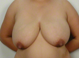 31 year old woman treated with Mommy Makeover: Breast Reduction before 3026494