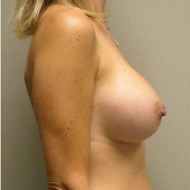 Breast Augmentation after 3681128