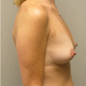 Breast Augmentation before 3681128