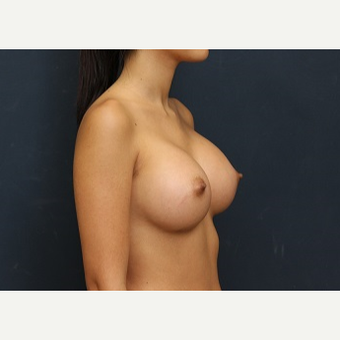 25-34 year old woman treated with Breast Augmentation after 3344104