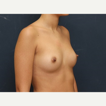25-34 year old woman treated with Breast Augmentation before 3344104