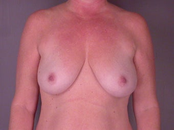 MASTOPEXY/AUGMENTATION  before 280026
