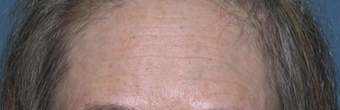 Before & After Fraxel Laser before 1064720