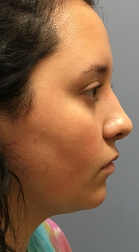 18 year old woman treated with Rhinoplasty after 3174203
