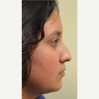18 year old woman treated with Rhinoplasty before 3174203