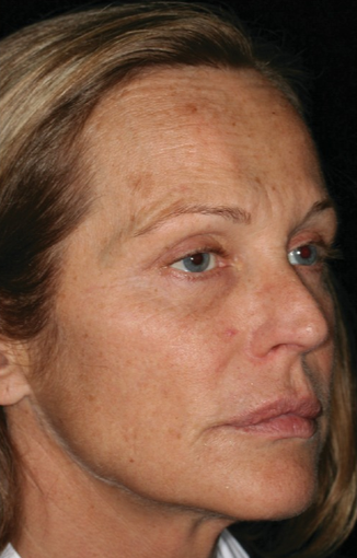 45-54 year old woman treated with Laser Resurfacing before 1860036
