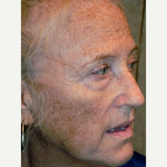 64  year old woman treated with RESET Laser Skin Resurfacing and lower lid blepharoplasty before 1941532