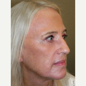 64  year old woman treated with RESET Laser Skin Resurfacing and lower lid blepharoplasty after 1941532