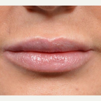 35-44 year old woman treated with Lip Implants